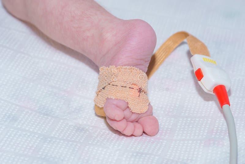 Sensor do oxímetro do pulso no pé do bebê recém-nascido no hospital do ` s das crianças fotos de stock royalty free