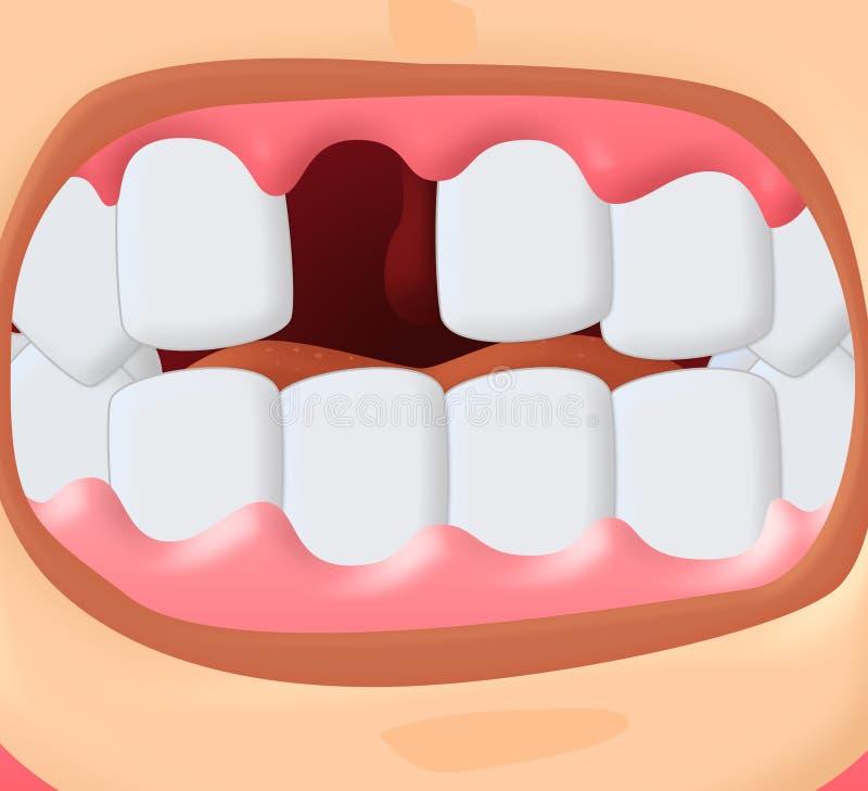 Senza denti illustrazione vettoriale