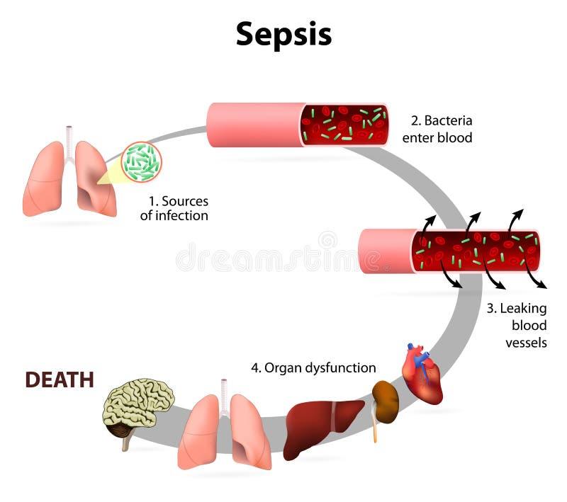 Sepsis stock illustration