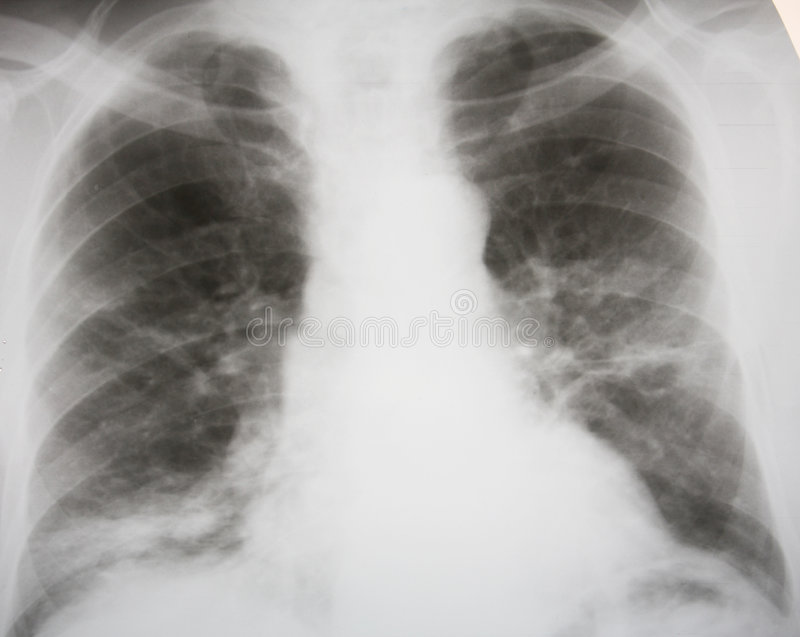 Download Septic pneumonia stock photo. Image of healthy, septic - 5642588