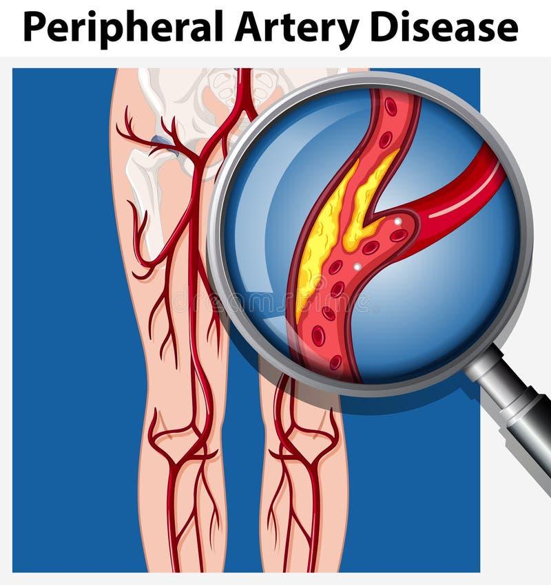 Ser humano con enfermedad periférica de la arteria ilustración del vector