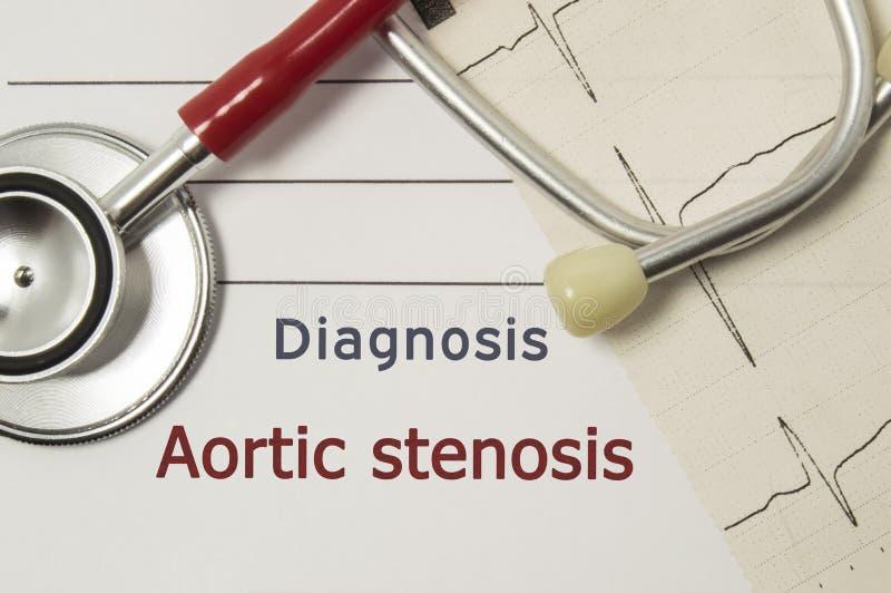 Sercowa diagnoza Aortic Stenosis Na doktorskim miejscu pracy jest czerwony stetoskop, drukuj?cy na papieru ECG linii i pi?ra zako obraz stock