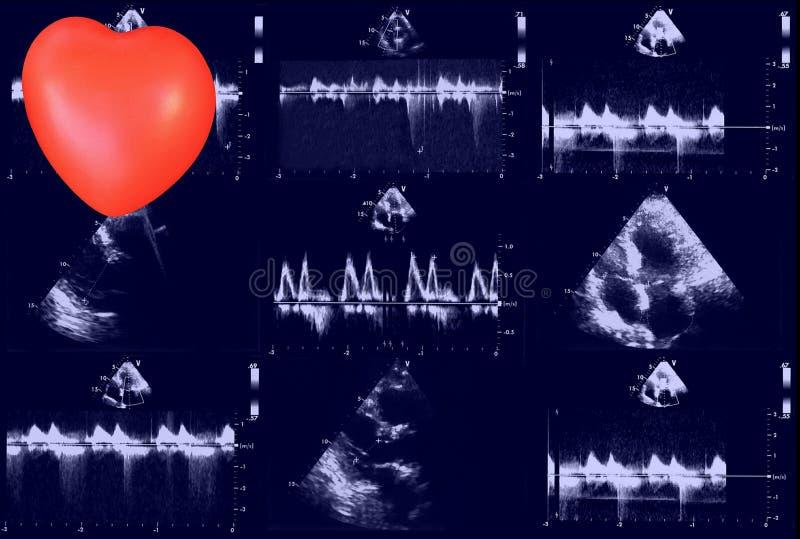 Sercowi ultradźwięków wizerunki i mały serce Doppler echo zdjęcia stock