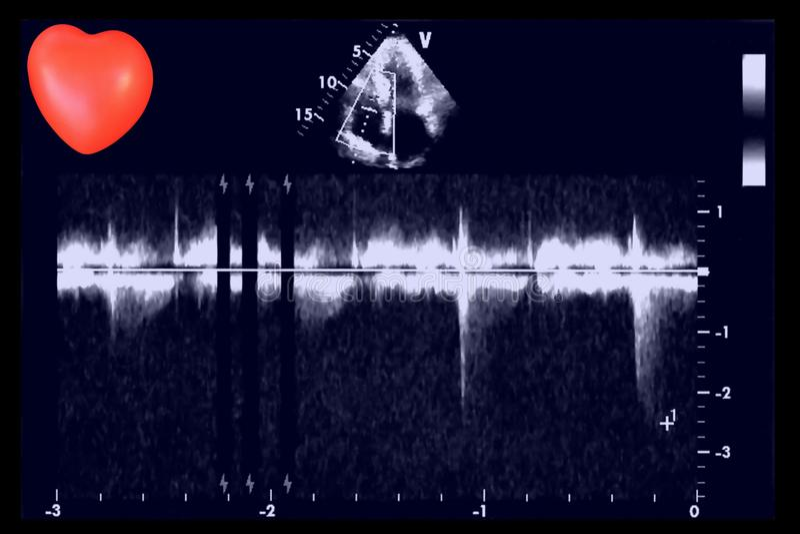Sercowi ultradźwięków wizerunki i mały serce Doppler echo obraz royalty free