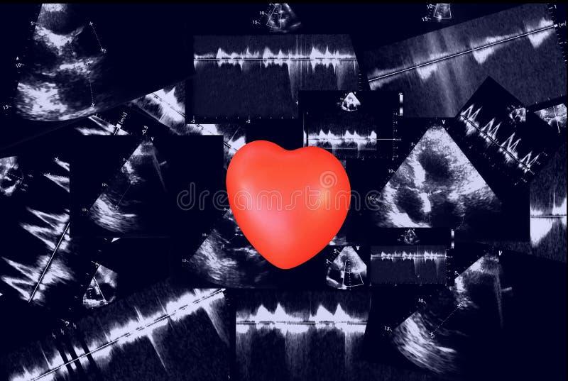Sercowi ultradźwięków wizerunki i mały serce Doppler echo obraz stock
