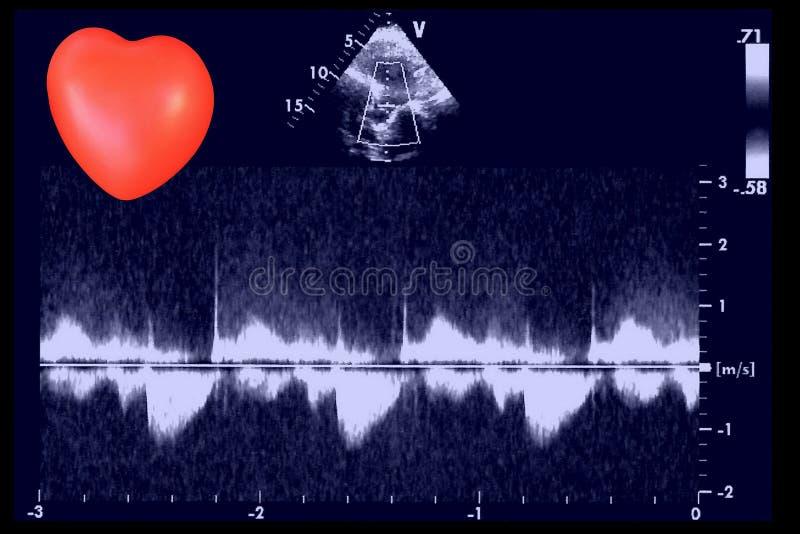 Sercowi ultradźwięków wizerunki i mały serce Doppler echo obrazy royalty free