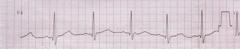Sercowy elektrokardiogram, tło obrazy royalty free