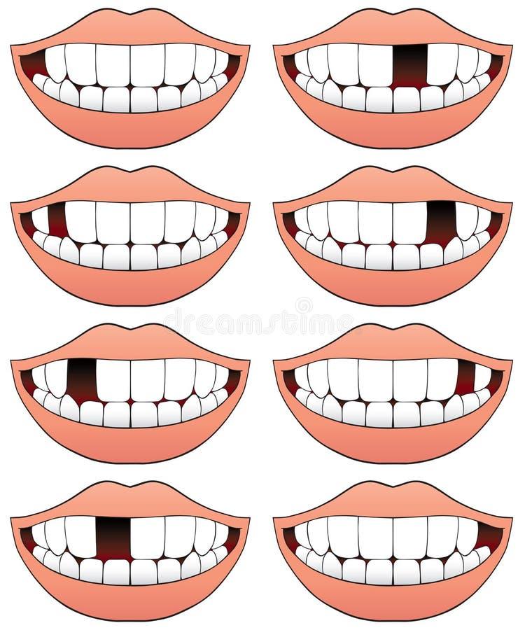 Serie mancante del dente illustrazione di stock