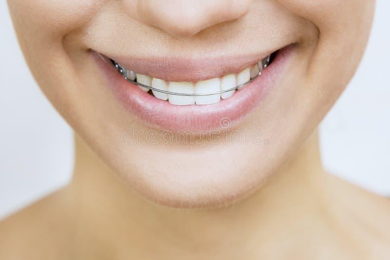 Serviteur pour des dents - belle fille de sourire avec l'arrêtoir pour le te photo libre de droits