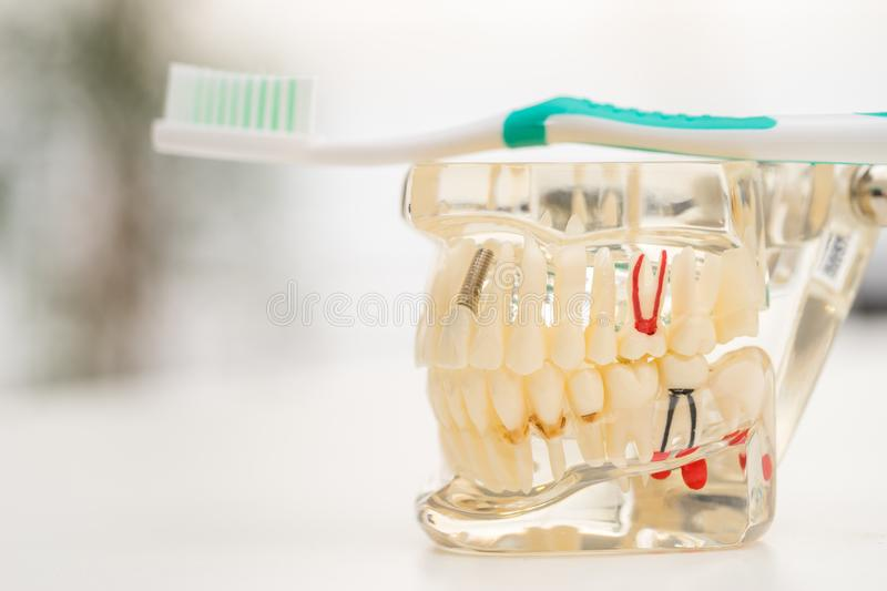 Set of Dentist`s equipment tools, denture showing implant. SONY A7 royalty free stock photography