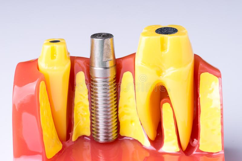Set of Dentist`s equipment tools, denture showing implant. SONY A7 stock photo