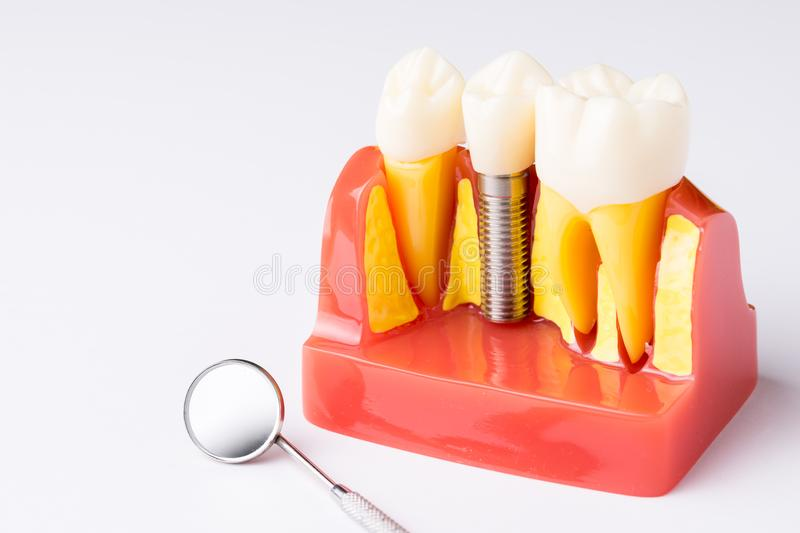 Set of Dentist`s equipment tools, denture showing implant. SONY A7 royalty free stock photos