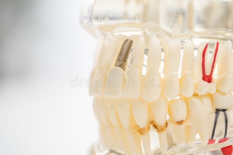 Set of Dentist`s equipment tools, denture showing implant royalty free stock photo