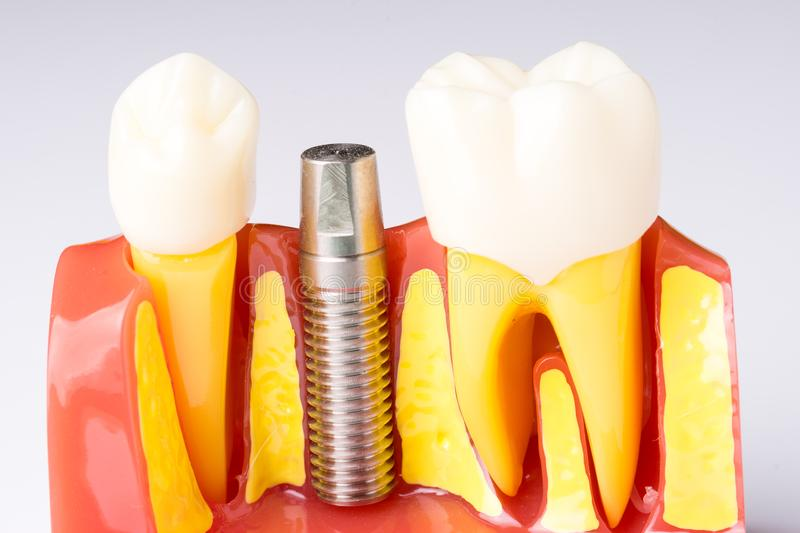 Set of Dentist`s equipment tools, denture showing implant. SONY A7 royalty free stock photo