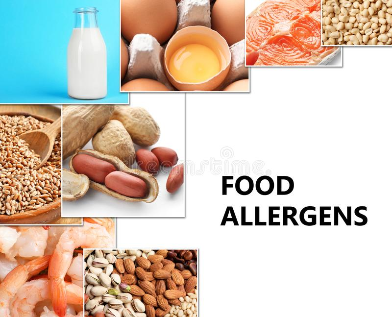Set of different products causing food allergies. On white background vector illustration