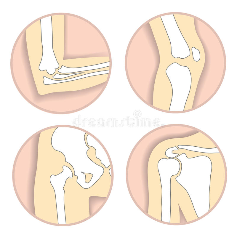 Set of human joints, elbow, knee, hip joint. Set of human joints, elbow, knee joint, hip and shoulder joint, skeletal bone structure. Emblem anatomy and