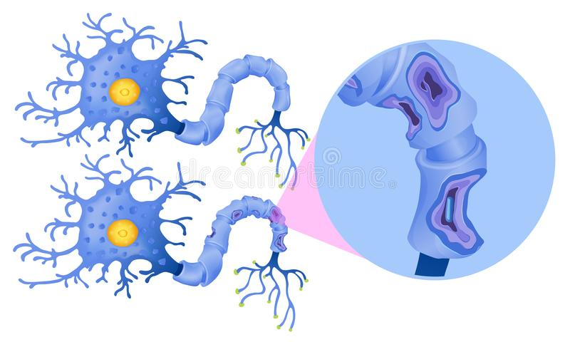 A Set of Human Nerve Cell stock vector. Illustration of anatomy ...