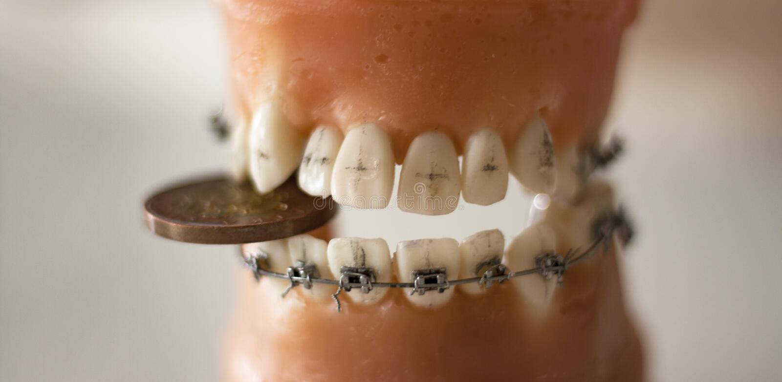 Set of teeth with braces and a coin photographed up close. A set of Teeth used for practice at dental school, with a coin stuck between them. Photographed up stock photography