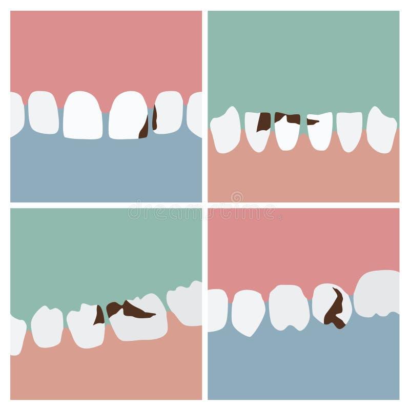 Teeth with cavities illustrations. Set of teeth with cavities - illustrations royalty free illustration