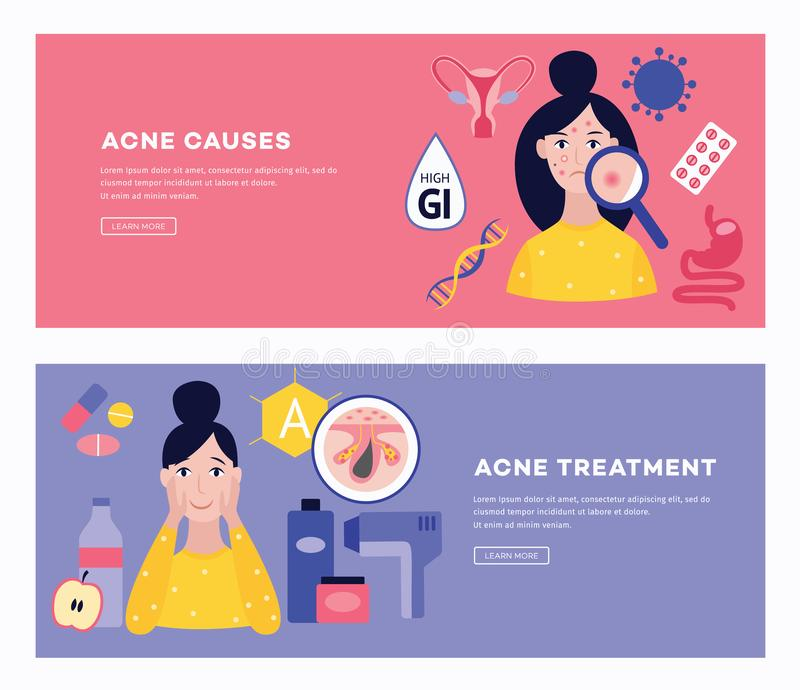 Two banners with the causes and methods of treating acne flat vector illustration. vector illustration