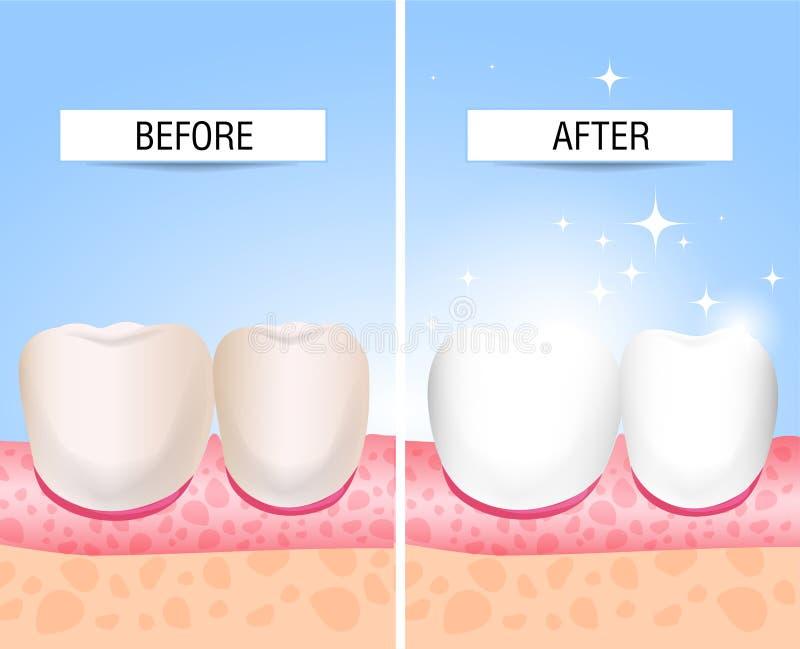 Seus dentes doentes e um saudável Auxílio visual para estudantes, dentistas, pacientes da clínica A derrota é uma fonte de destru ilustração stock