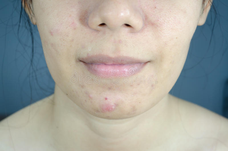 Severe acne. Woman with oily skin and acne scars royalty free stock image