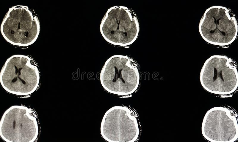 Severe depression fracture of a skull. CT scan of a skull of a patient with traumatic brain injury showing severe depression fracture of left temporoparietal stock image