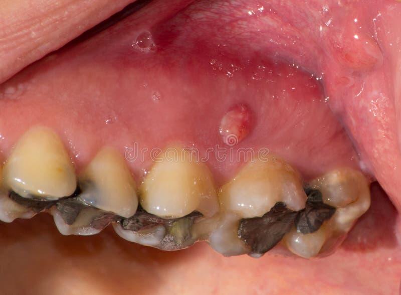 Download Severe gingivitis stock image. Image of filling, orthodontist - 27276699