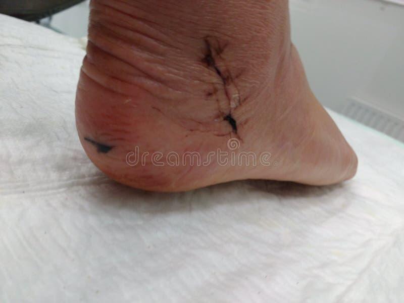 Sew seam foot stock photos