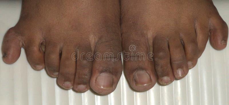 Sex fingrar i båda fot royaltyfri bild