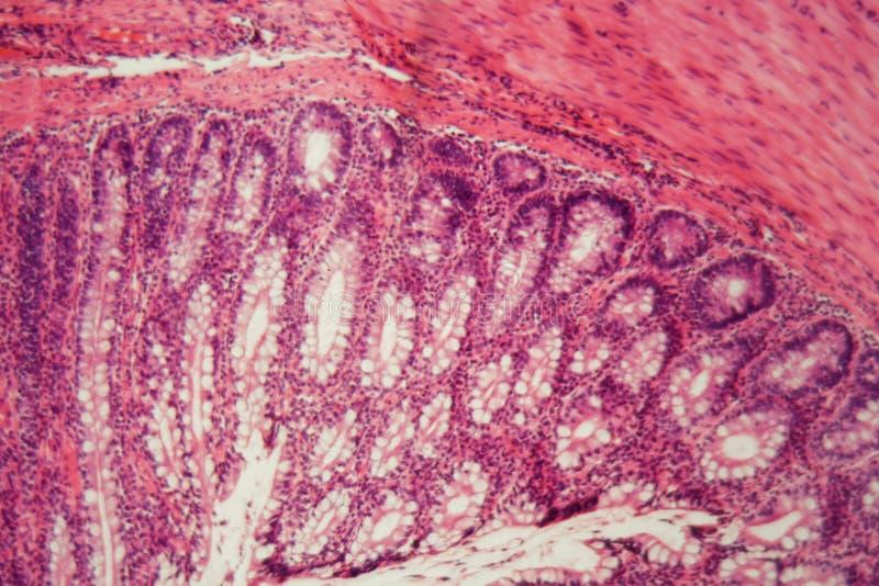 Sezione di un epitelio ciliato del cane fotografie stock libere da diritti