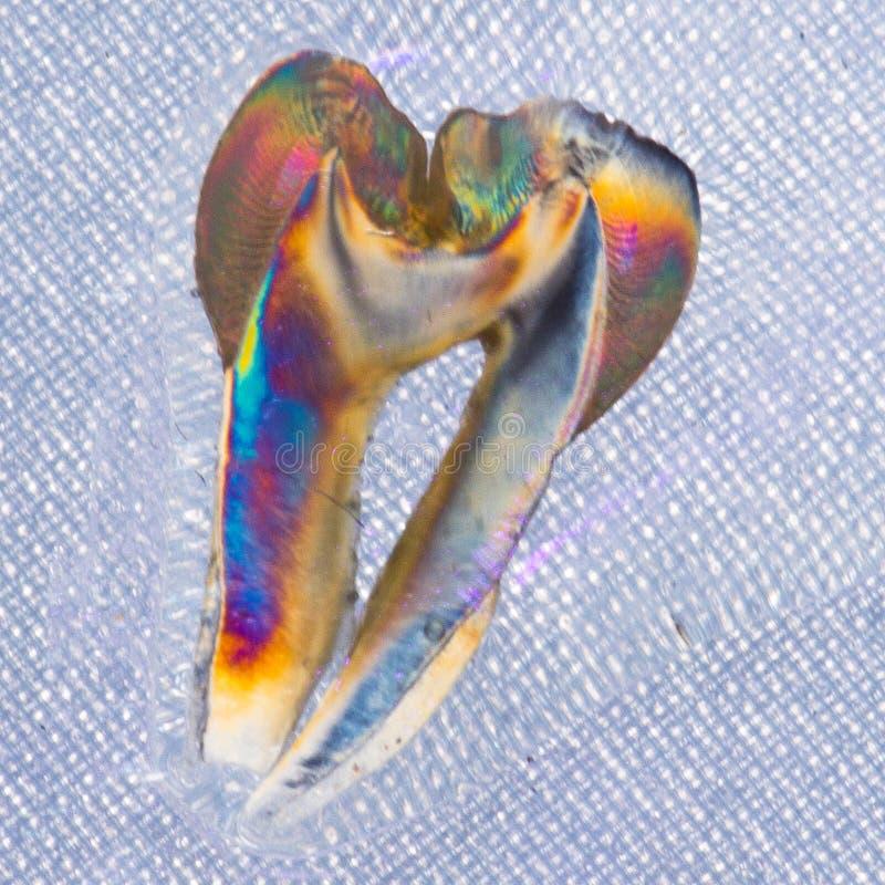 Sezione longitudinale da un dente umano isolato su fondo nero fotografia stock libera da diritti