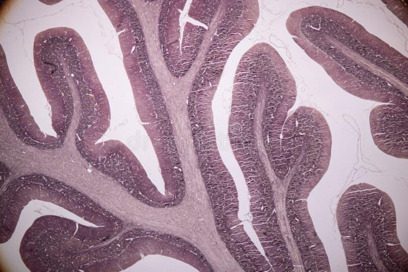 Sezione trasversale del cervelletto e del nervo umani sotto il microscopio per istruzione immagini stock