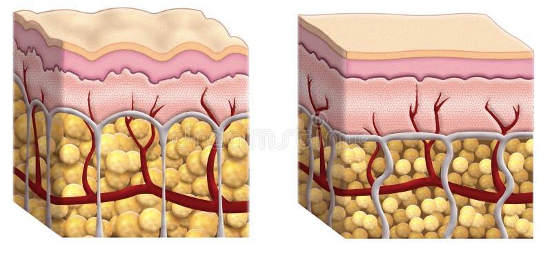 Sezione trasversale delle celluliti illustrazione di stock