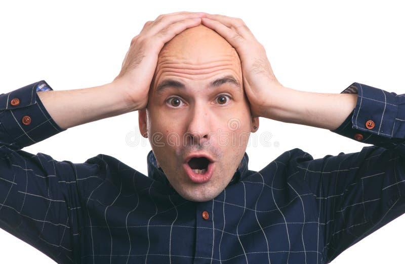 Shocked bald guy. hair loss. Isolated royalty free stock photos