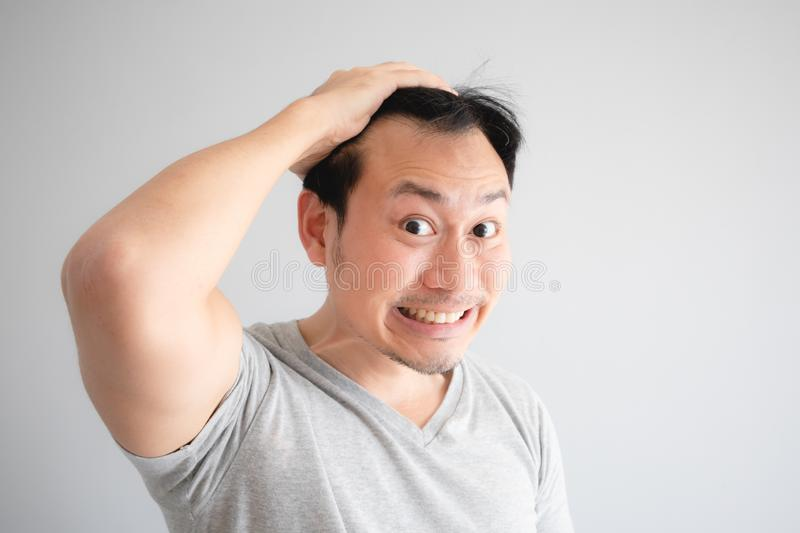Shocked face of Asian man find himself lost hair and get bald stock photo