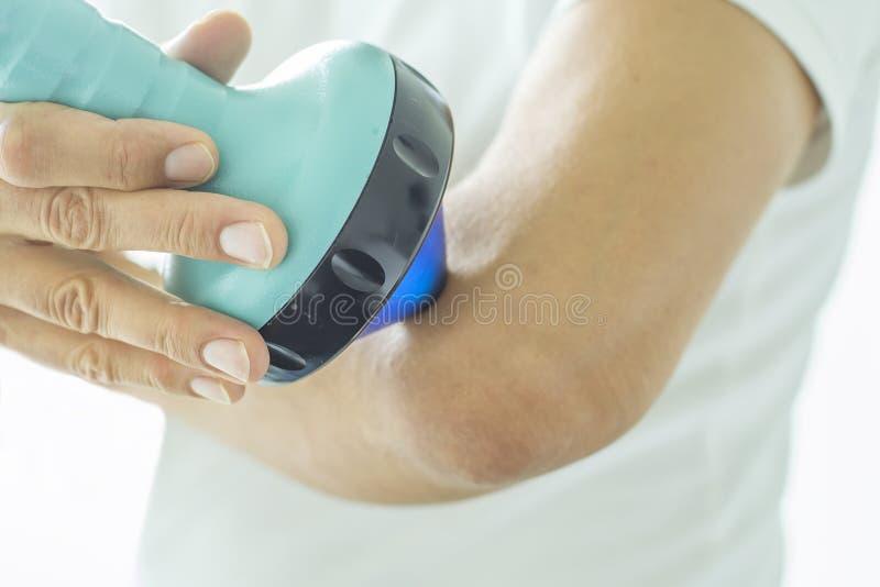Shockwave θεραπεία στον αγκώνα στοκ φωτογραφία με δικαίωμα ελεύθερης χρήσης