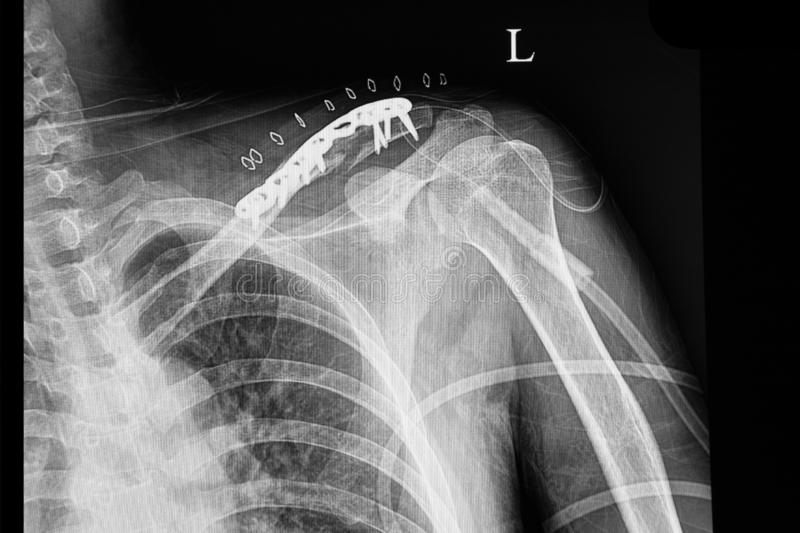A shouder film xray of a patient with fractured clavicle royalty free stock photography