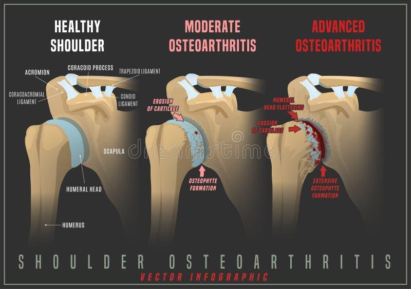 Shoulder osteoarthritis infographic royalty free stock image