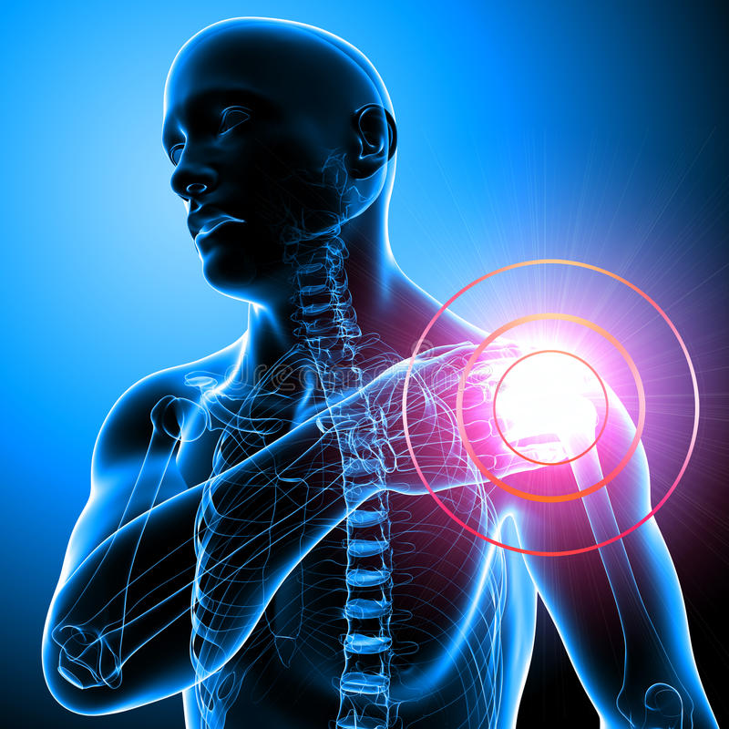 Shoulder pain of male in blue royalty free illustration