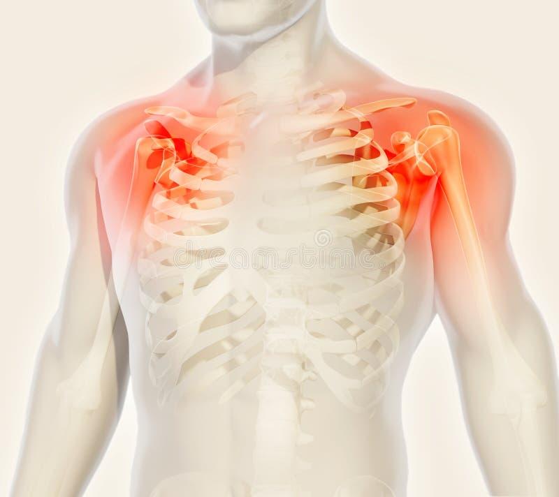 Shoulder painful skeleton x-ray, 3D illustration. vector illustration