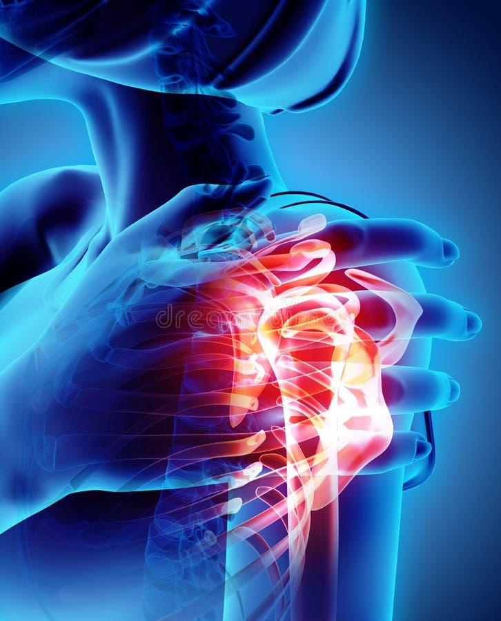 Shoulder painful skeleton x-ray, 3D illustration. royalty free illustration