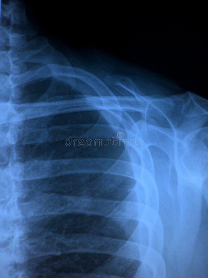 Download Shoulder X-Ray stock photo. Image of bone, hospital, skeleton - 13510294