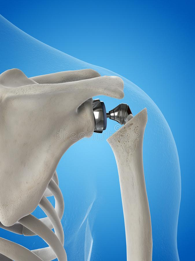 A shoulder replacement. 3d rendered medically accurate illustration of a shoulder replacement vector illustration