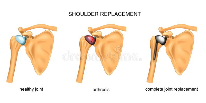 Shoulder replacement. surgery. Vector illustration of shoulder replacement. surgery. traumatology vector illustration