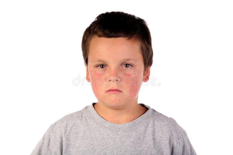 Sick boy child 3 royalty free stock image