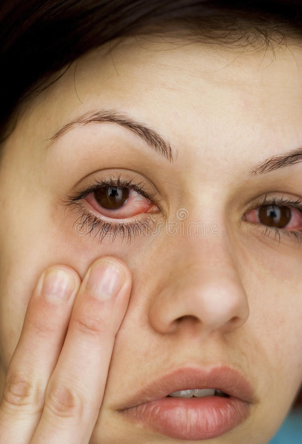 Download Sick womans eyes stock image. Image of caucasian, inflammation - 30719023