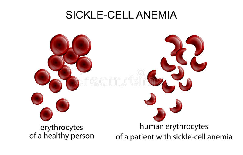Sickle cell anemia. Illustration of blood cells in the disease sickle-cell anemia vector illustration