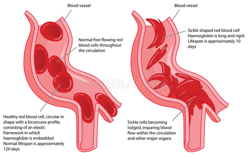 Sickle cell disease. Normal red blood cells and sickle cells in a blood vessel showing disrupted blood flow. Created in Adobe Illustrator. EPS 10 vector illustration