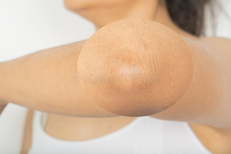 Side elbow. Elbow skin problems stock image